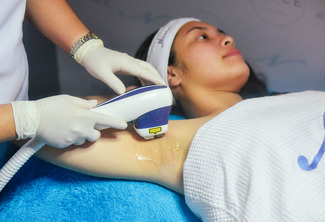 Asclepion Laser Diode Underarm Hair Removal Treatment