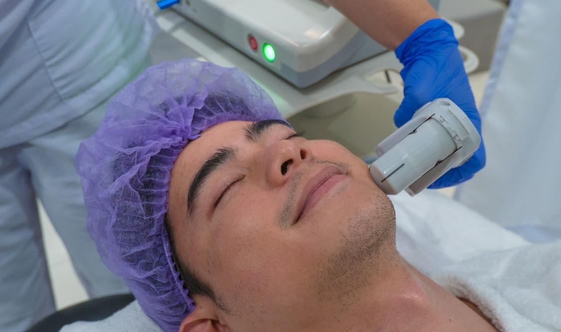 HiFu (Ultherapy) Full Face