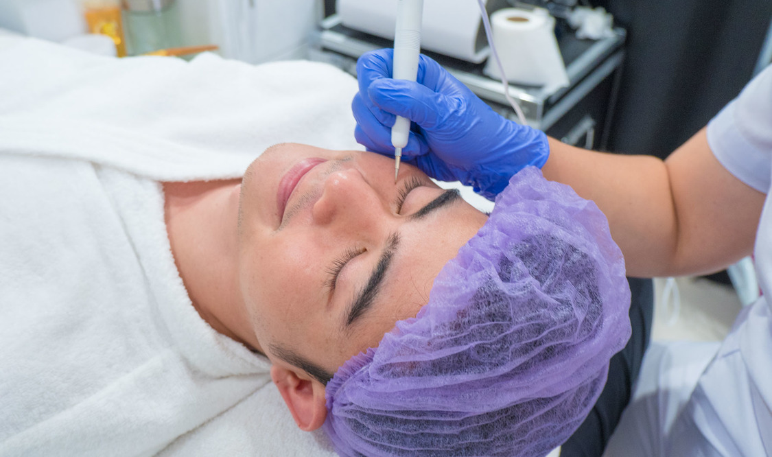 Unlimited Face Warts Removal