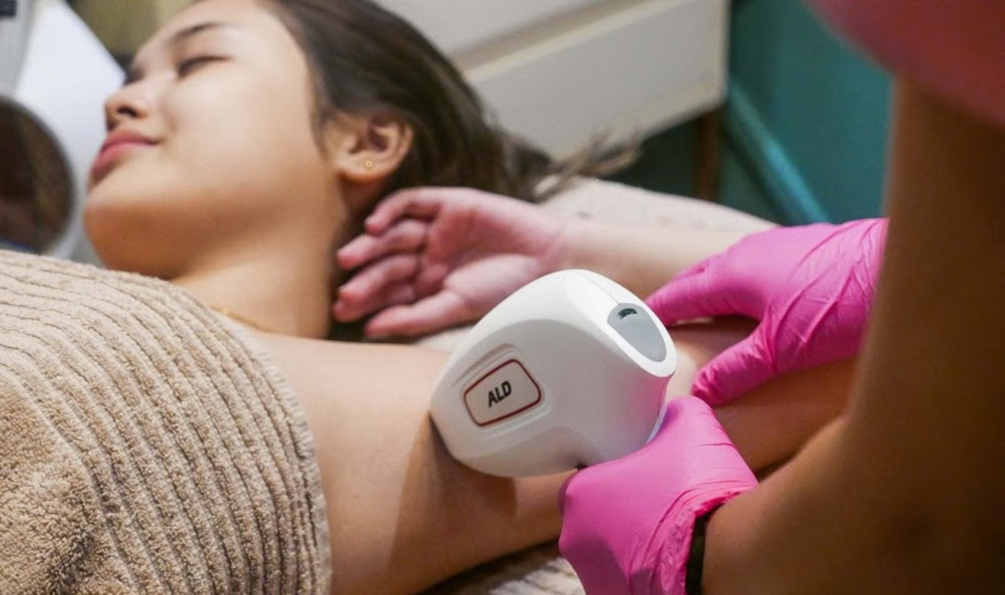 Magma Diode Laser Hair Removal For Underarms From Cara Laser Skin